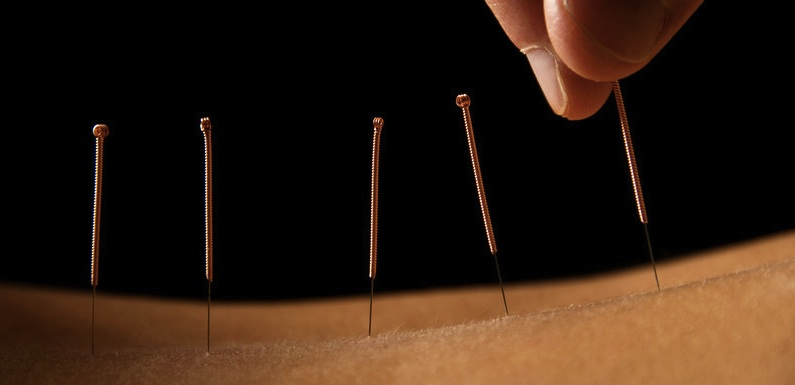 Acupuncture in Denver
